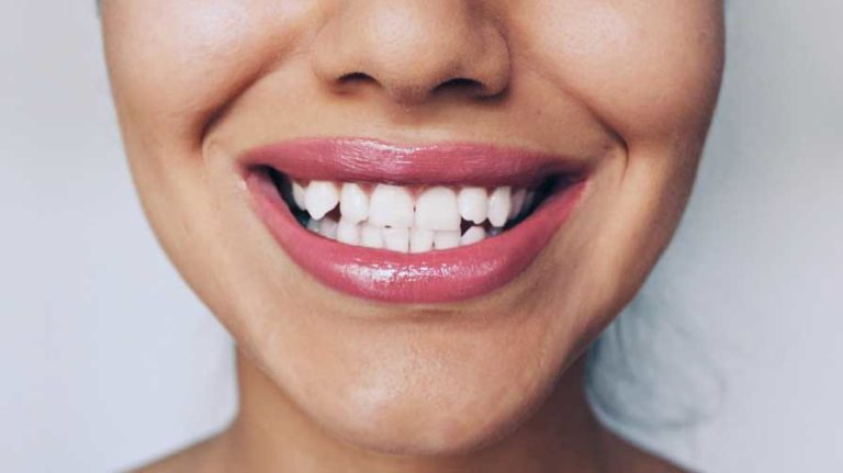 hampaanvalkaisu tohtoripalvelu itu