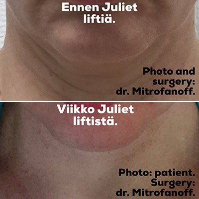 juliet facelift kasvojenkohotus tulos