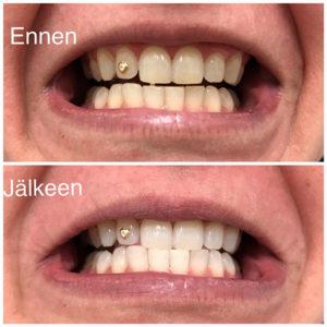Hampaiden kevytvalkaisu, hampaat vaalenivat 4 astetta