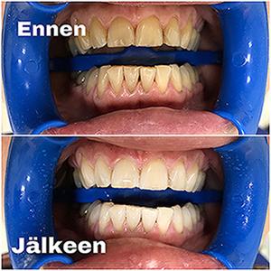 hampaiden tehovalkaisu Tohtoripalvelu Itu