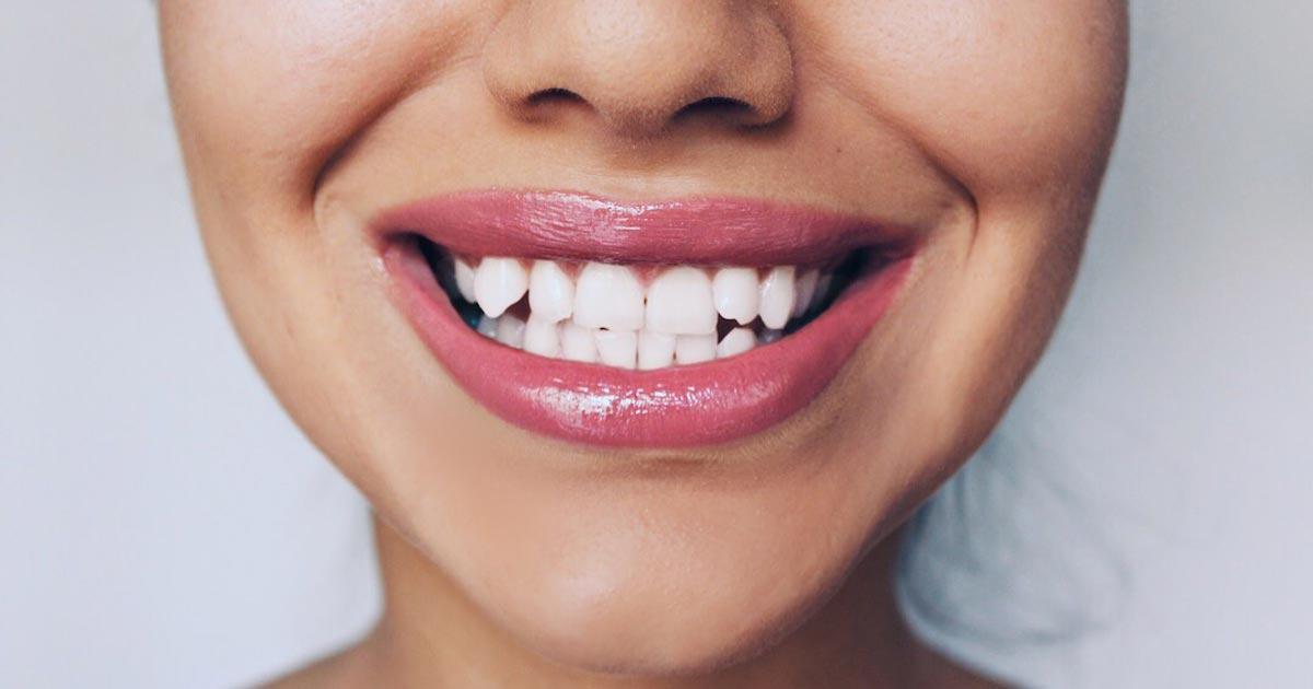 valkaistut hampaat