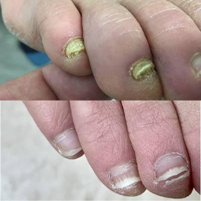 kynsisilsa ennen ja jälkeen laserhoidon