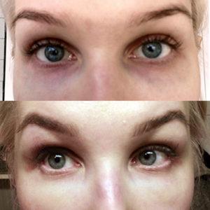 Laserhoito auttoi nuorehkon naisen tummiin silmänalusiin
